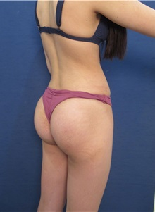 Buttock Lift with Augmentation After Photo by Arian Mowlavi, MD; Laguna Beach, CA - Case 35626