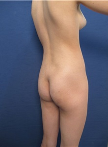 Buttock Lift with Augmentation Before Photo by Arian Mowlavi, MD; Laguna Beach, CA - Case 35626