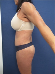 Body Contouring After Photo by Arian Mowlavi, MD; Laguna Beach, CA - Case 35914