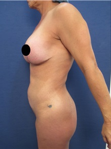 Body Contouring Before Photo by Arian Mowlavi, MD; Laguna Beach, CA - Case 35914