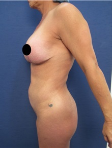 Buttock Lift with Augmentation Before Photo by Arian Mowlavi, MD; Laguna Beach, CA - Case 35915