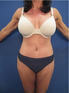 Buttock Lift with Augmentation After Photo by Arian Mowlavi, MD; Laguna Beach, CA - Case 35915