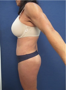 Liposuction After Photo by Arian Mowlavi, MD; Laguna Beach, CA - Case 35916
