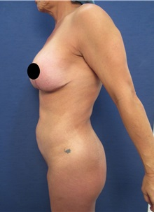 Liposuction Before Photo by Arian Mowlavi, MD; Laguna Beach, CA - Case 35916