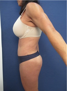 Tummy Tuck After Photo by Arian Mowlavi, MD; Laguna Beach, CA - Case 35917