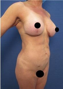 Tummy Tuck After Photo by Arian Mowlavi, MD; Laguna Beach, CA - Case 35917