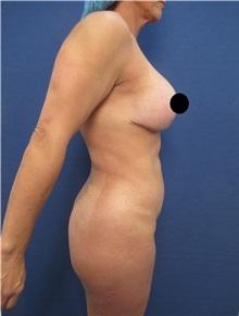 Tummy Tuck Before Photo by Arian Mowlavi, MD; Laguna Beach, CA - Case 35917
