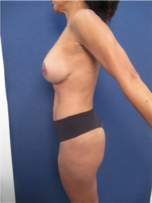 Body Contouring After Photo by Arian Mowlavi, MD; Laguna Beach, CA - Case 35955