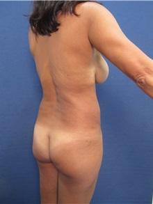 Body Contouring Before Photo by Arian Mowlavi, MD; Laguna Beach, CA - Case 35955