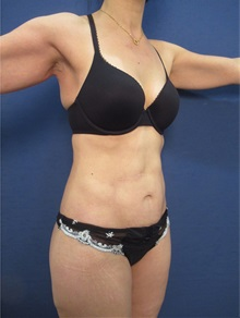 Body Contouring After Photo by Arian Mowlavi, MD; Laguna Beach, CA - Case 36189