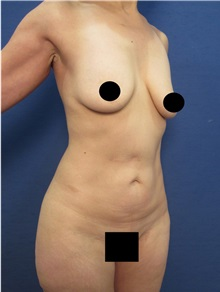 Body Contouring Before Photo by Arian Mowlavi, MD; Laguna Beach, CA - Case 36189