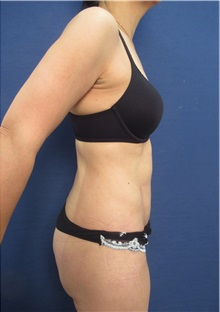 Body Lift After Photo by Arian Mowlavi, MD; Laguna Beach, CA - Case 36190