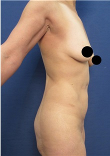 Body Lift Before Photo by Arian Mowlavi, MD; Laguna Beach, CA - Case 36190
