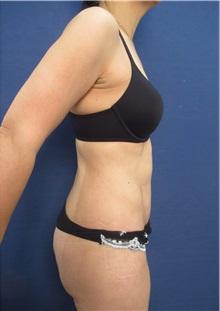 Tummy Tuck After Photo by Arian Mowlavi, MD; Laguna Beach, CA - Case 36191