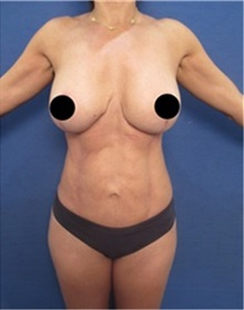 Breast Lift After Photo by Arian Mowlavi, MD; Laguna Beach, CA - Case 36533