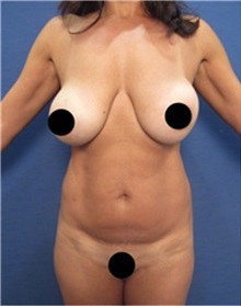 Breast Lift Before Photo by Arian Mowlavi, MD; Laguna Beach, CA - Case 36533