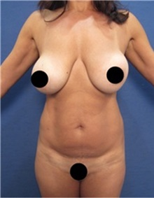 Breast Implant Removal Before Photo by Arian Mowlavi, MD; Laguna Beach, CA - Case 36534