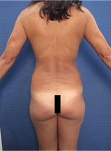 Buttock Lift with Augmentation Before Photo by Arian Mowlavi, MD; Laguna Beach, CA - Case 36535