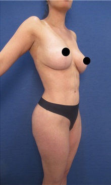 Body Contouring After Photo by Arian Mowlavi, MD; Laguna Beach, CA - Case 36538