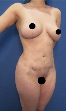Body Contouring Before Photo by Arian Mowlavi, MD; Laguna Beach, CA - Case 36538