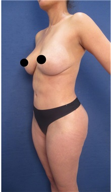 Buttock Lift with Augmentation After Photo by Arian Mowlavi, MD; Laguna Beach, CA - Case 36539