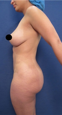 Buttock Lift with Augmentation Before Photo by Arian Mowlavi, MD; Laguna Beach, CA - Case 36539