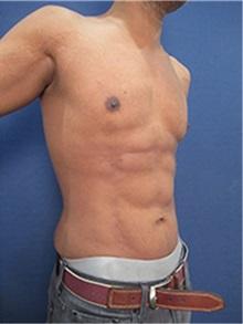 Body Contouring After Photo by Arian Mowlavi, MD; Laguna Beach, CA - Case 36541