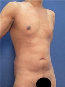 Body Contouring Before Photo by Arian Mowlavi, MD; Laguna Beach, CA - Case 36541