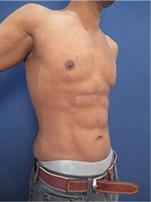 Tummy Tuck After Photo by Arian Mowlavi, MD; Laguna Beach, CA - Case 36542