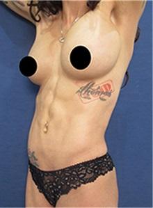 Body Contouring After Photo by Arian Mowlavi, MD; Laguna Beach, CA - Case 36544