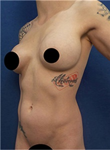 Body Contouring Before Photo by Arian Mowlavi, MD; Laguna Beach, CA - Case 36544