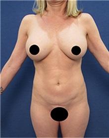 Body Contouring Before Photo by Arian Mowlavi, MD; Laguna Beach, CA - Case 36548