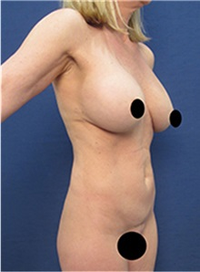 Breast Implant Revision Before Photo by Arian Mowlavi, MD; Laguna Beach, CA - Case 36549