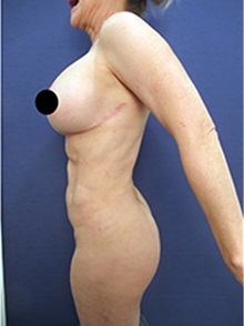 Breast Implant Revision After Photo by Arian Mowlavi, MD; Laguna Beach, CA - Case 36549