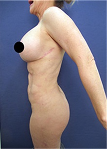 Breast Lift After Photo by Arian Mowlavi, MD; Laguna Beach, CA - Case 36550