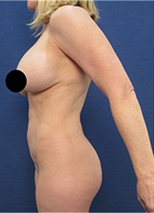 Breast Lift Before Photo by Arian Mowlavi, MD; Laguna Beach, CA - Case 36550