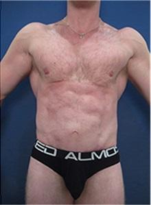 Body Contouring After Photo by Arian Mowlavi, MD; Laguna Beach, CA - Case 36558