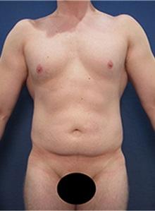 Body Contouring Before Photo by Arian Mowlavi, MD; Laguna Beach, CA - Case 36558