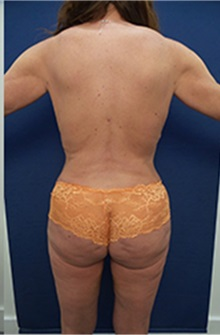 Body Contouring After Photo by Arian Mowlavi, MD; Laguna Beach, CA - Case 36562