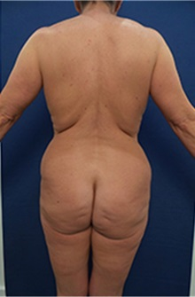 Body Contouring Before Photo by Arian Mowlavi, MD; Laguna Beach, CA - Case 36562