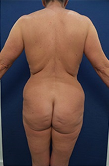 Buttock Lift with Augmentation Before Photo by Arian Mowlavi, MD; Laguna Beach, CA - Case 36564