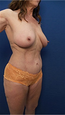Buttock Lift with Augmentation After Photo by Arian Mowlavi, MD; Laguna Beach, CA - Case 36564