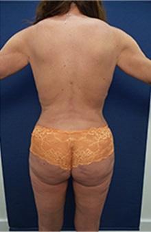 Liposuction After Photo by Arian Mowlavi, MD; Laguna Beach, CA - Case 36565