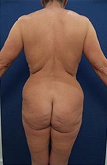 Liposuction Before Photo by Arian Mowlavi, MD; Laguna Beach, CA - Case 36565