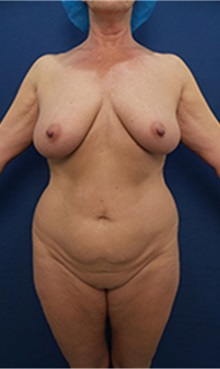 Tummy Tuck Before Photo by Arian Mowlavi, MD; Laguna Beach, CA - Case 36566