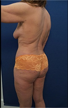 Tummy Tuck After Photo by Arian Mowlavi, MD; Laguna Beach, CA - Case 36566