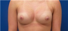 Breast Augmentation After Photo by Rudolf Thompson, MD; Colts Neck, NJ - Case 30717