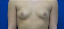 Breast Augmentation Before Photo by Rudolf Thompson, MD; Colts Neck, NJ - Case 30717