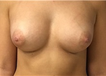 Breast Augmentation After Photo by Rudolf Thompson, MD; Colts Neck, NJ - Case 30719