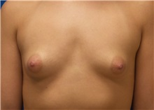 Breast Augmentation Before Photo by Rudolf Thompson, MD; Colts Neck, NJ - Case 30719